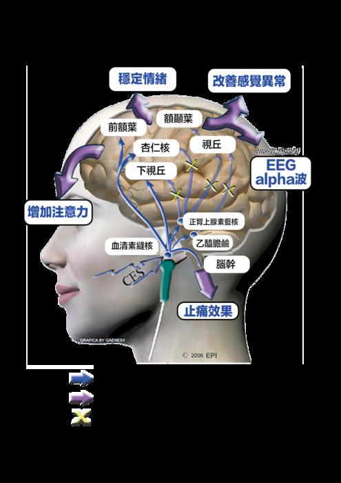 微電流刺激效果大腦圖_工作區域 1